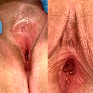 Vaginal Rejuvenation Sacramento, California. Before and After Pictures and Photos